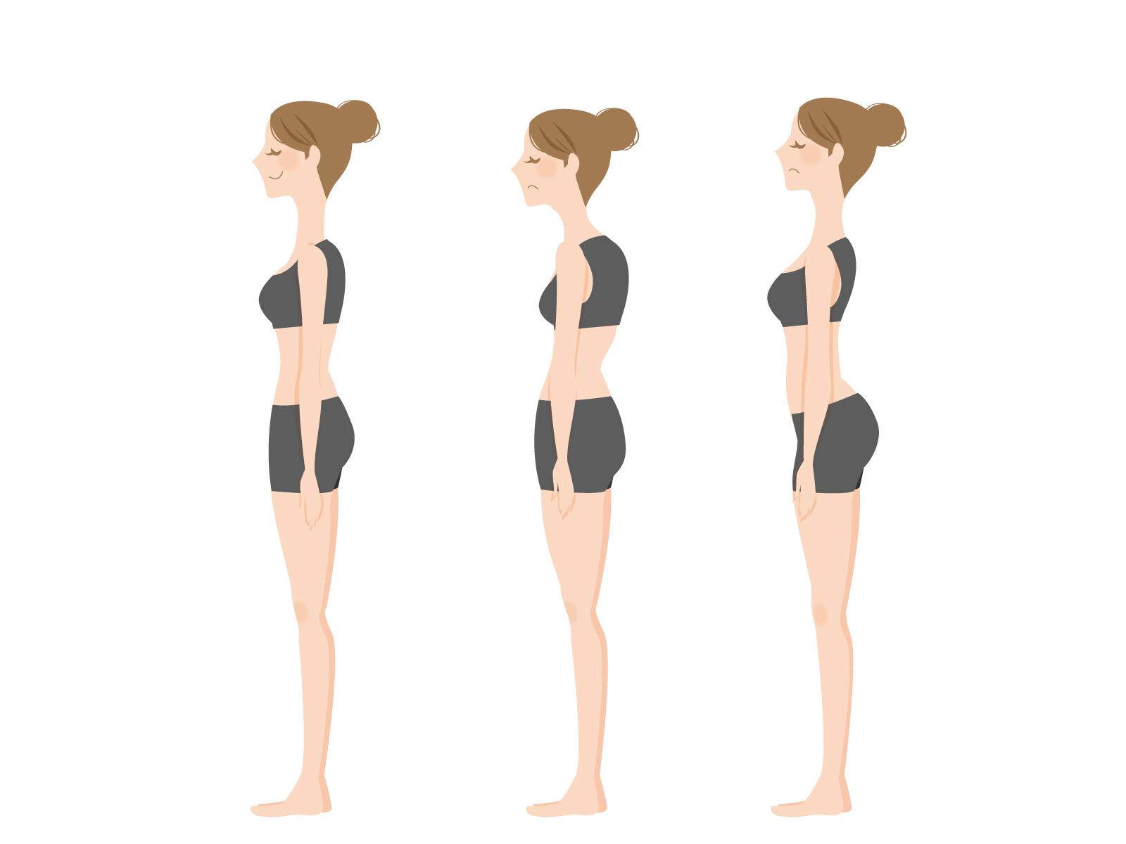 反り腰の特徴